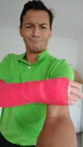 Treppensturz und ein gebrochender Arm